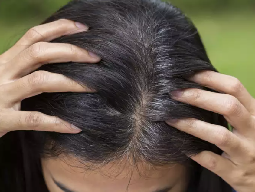 best Anti gray hair pill for reversing graying hair